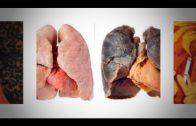 Neumosur alerta de la incidencia cáncer de pulmón en Huelva, Cádiz y Sevilla